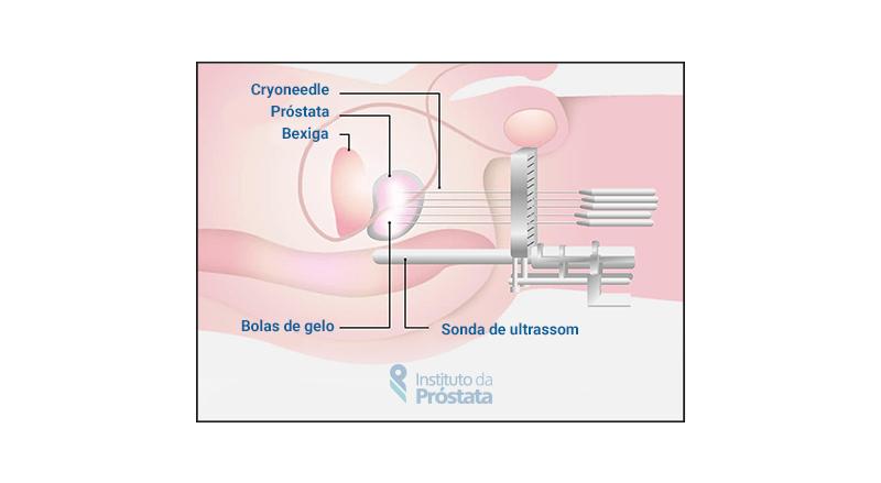 Crioterapia Procedimento