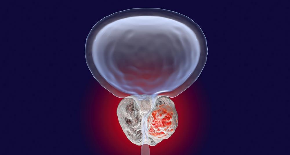 Instituto Da Prostata Prostata Aumentada Pode Causar Disfuncao Erectil Impotencia Sexual