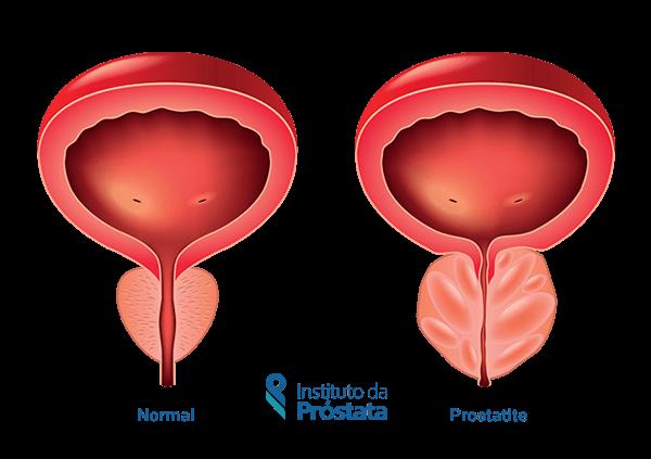 Chaga és prostatitis