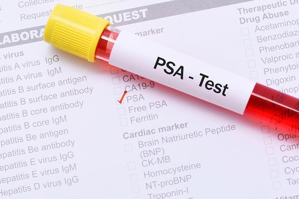 Quais Os Sinomas Cancro Prostata Como Identificar